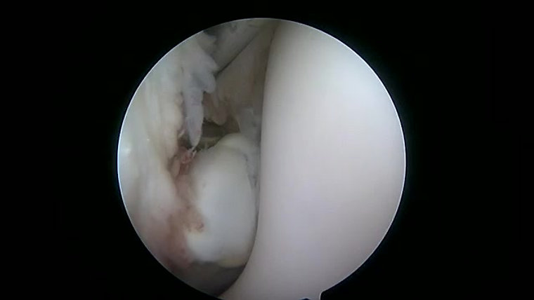 Arthroscopy Videos