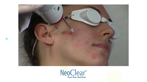 NeoClear - Patient - with Music