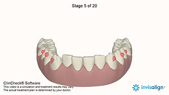 Level and expand lower jaw
