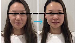 美容鍼灸 施術例