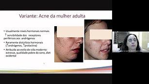 TEMA: Tratamento da Acne