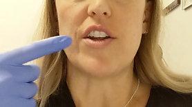 Lip Aftercare Description