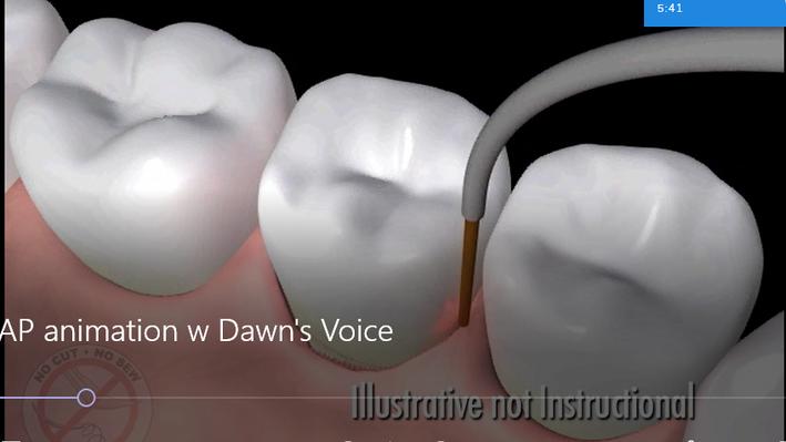 LANAP - Laser Gum Surgery Animation
