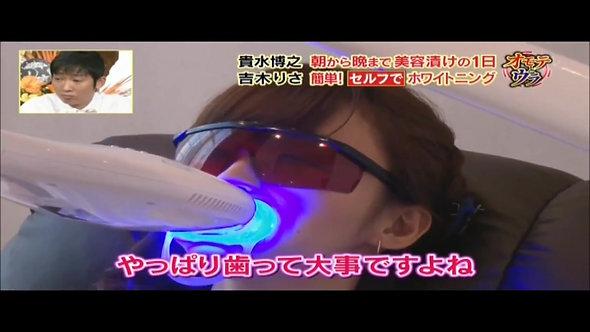 吉木りさ様が「ダウンタウンDX」でセルフホワイトニングを紹介!