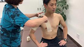 肩鎖関節捻挫