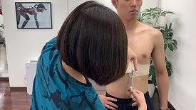 肩関節反復性前方脱臼