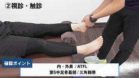 足関節外反捻挫