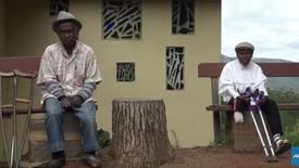 A Madagascar, les lépreux souffrent de la stigmatisation