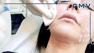 Collagen Shaping Tutorial - 2