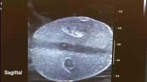 Prostate Phantom Ultrasound