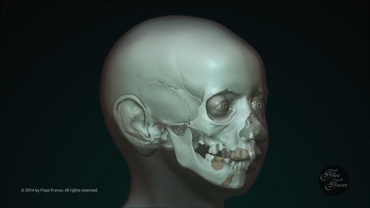 Facial Approximation of Subject A
