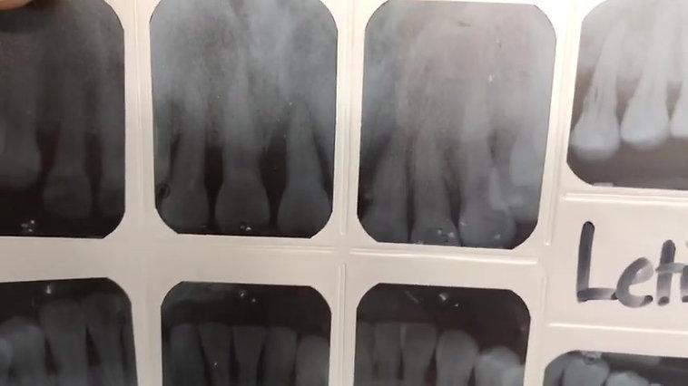 Ferulizacion en diente comprometido periodontalmente