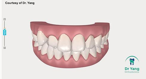 隱適美 牙齒移動模擬