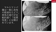 胃マルトリンパ腫