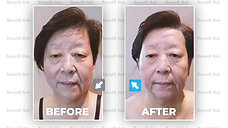 Face Lifting and Wrinkles Reduction with CORE RF Technology Treatment