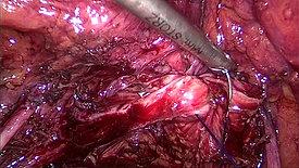Un-edited Vaginal Cuff Closure #4