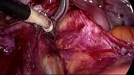Pararectal Fossa - Dissection for Benign Disease