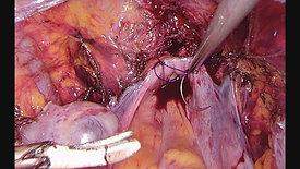 Vaginal Cuff Closure by Annela Möts #1
