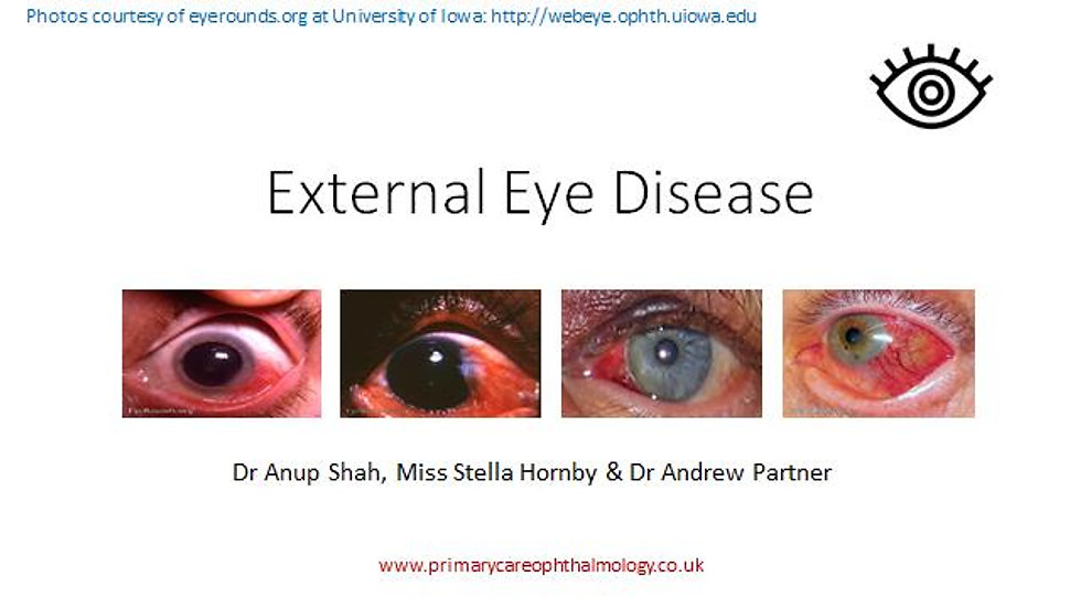 External Eye Disease