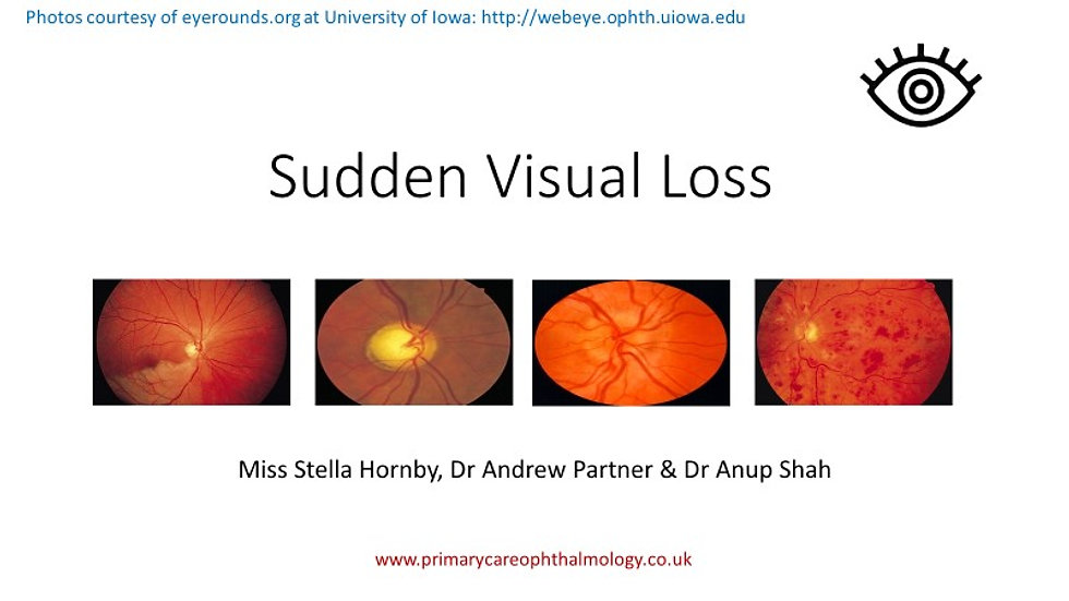 Sudden Visual Loss
