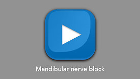 Mandibular nerve block