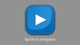 Epidural analgesia
