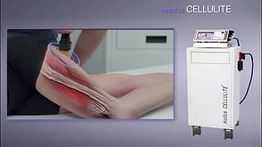 MODUS CELLULITE - Acoustic Wave Therapy device (AWT)