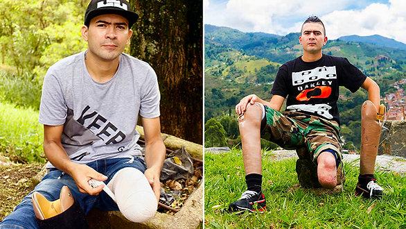 Deison, dos prótesis le cambiaron la vida - Mahavir Kmina