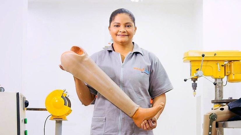 10 años brindando prótesis gratuitas - Mahavir Kmina