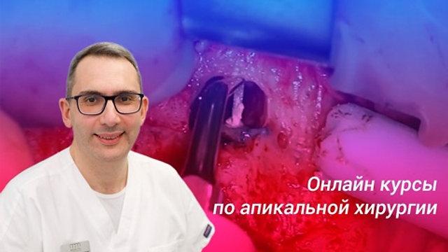 СОВРЕМЕННАЯ АПИКАЛЬНАЯ МИКРОХИРУРГИЯ. Цикл вебинаров от И. Мера.
