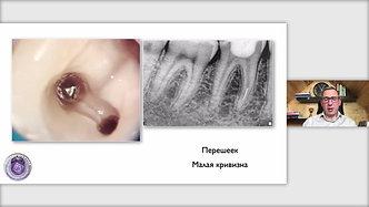 Тактика лечения зубов с фрагментами инструментов