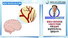 혈관성 치매 원인과 증상 및 예방
