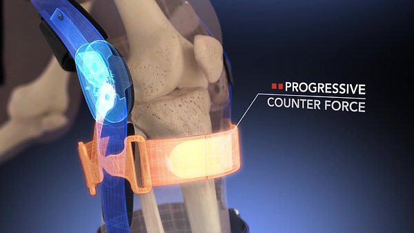 Dynamic Ligament Brace