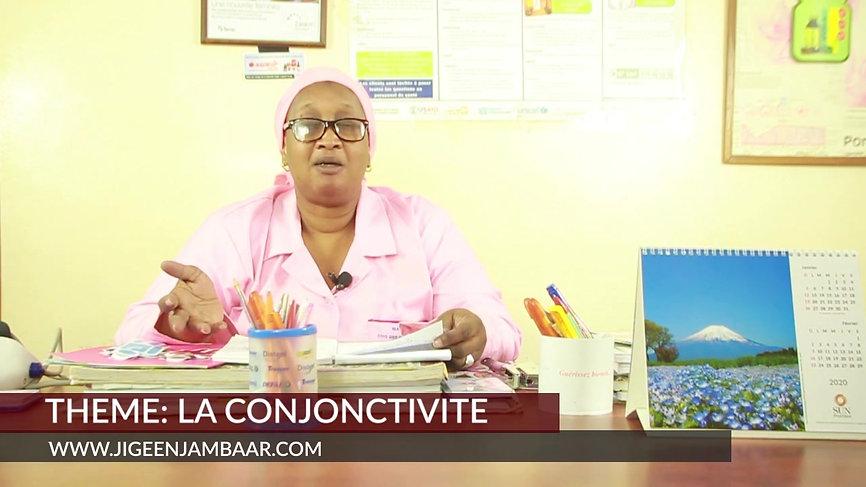 Conjonctivite