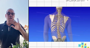 All about Scoliosis