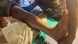 مساج خشونة الركبة