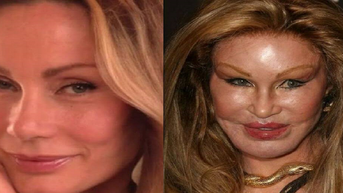 Top 10 Worst Celebrity Plastic Surgeries