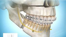 Avance Maxilar-Mandibular con Impactación (rotación antihoraria)