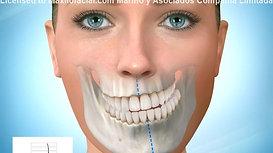 Asimetría Facial (Maxilar y Mandíbula)
