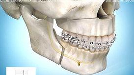 Avance Maxilar-Mandibular (para vía aérea)