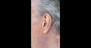 EAR Ye