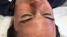 Mens facial rejuvenation