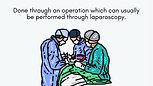 Ovarian Tissue Introduction